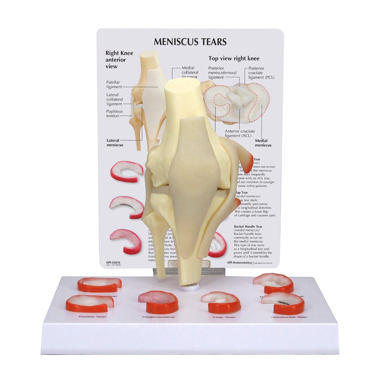 Modelo de rodilla, menisco con 6 desgarros   Anatomical 3D
